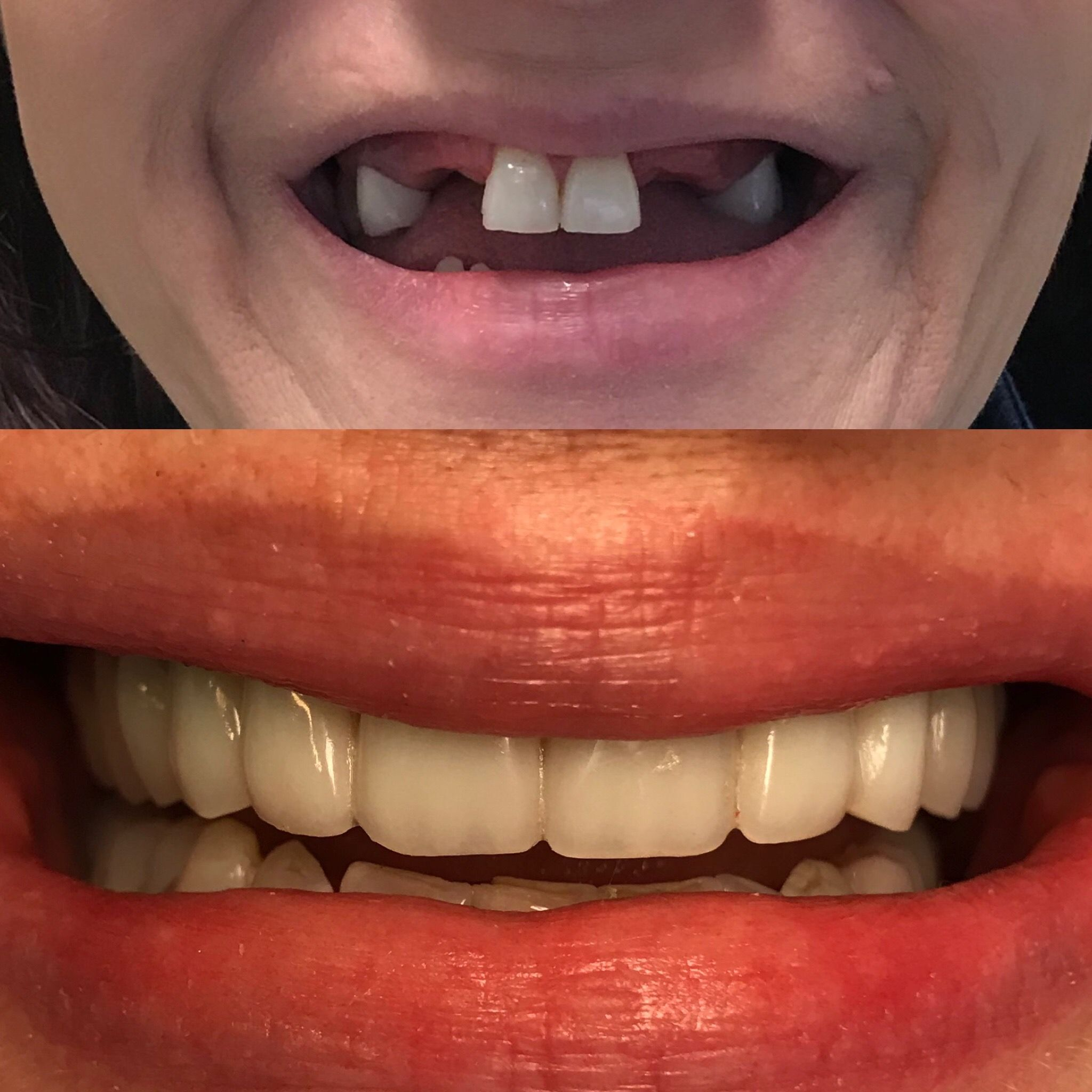 All on Four Permanent Dental Implant