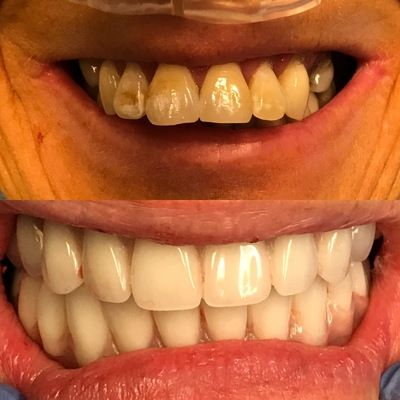Texas Denture Clinic and Implant Center of Amarillo Dental Implants