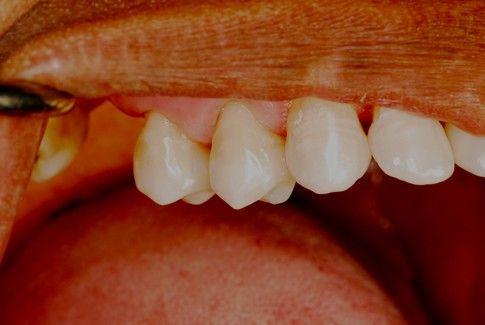 improved teeth with dental bonding