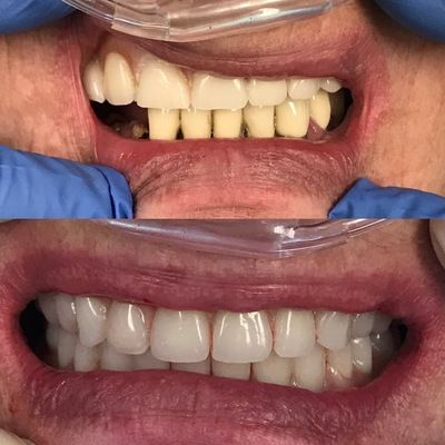 Immediate Dentures replacing an old upper denture and lower failing teeth