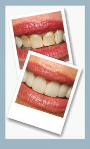 Before and after photographs of a patient who received LUMINEERS® treatment.