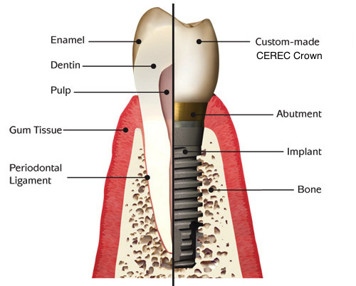 Dental Implants Elkhart IN
