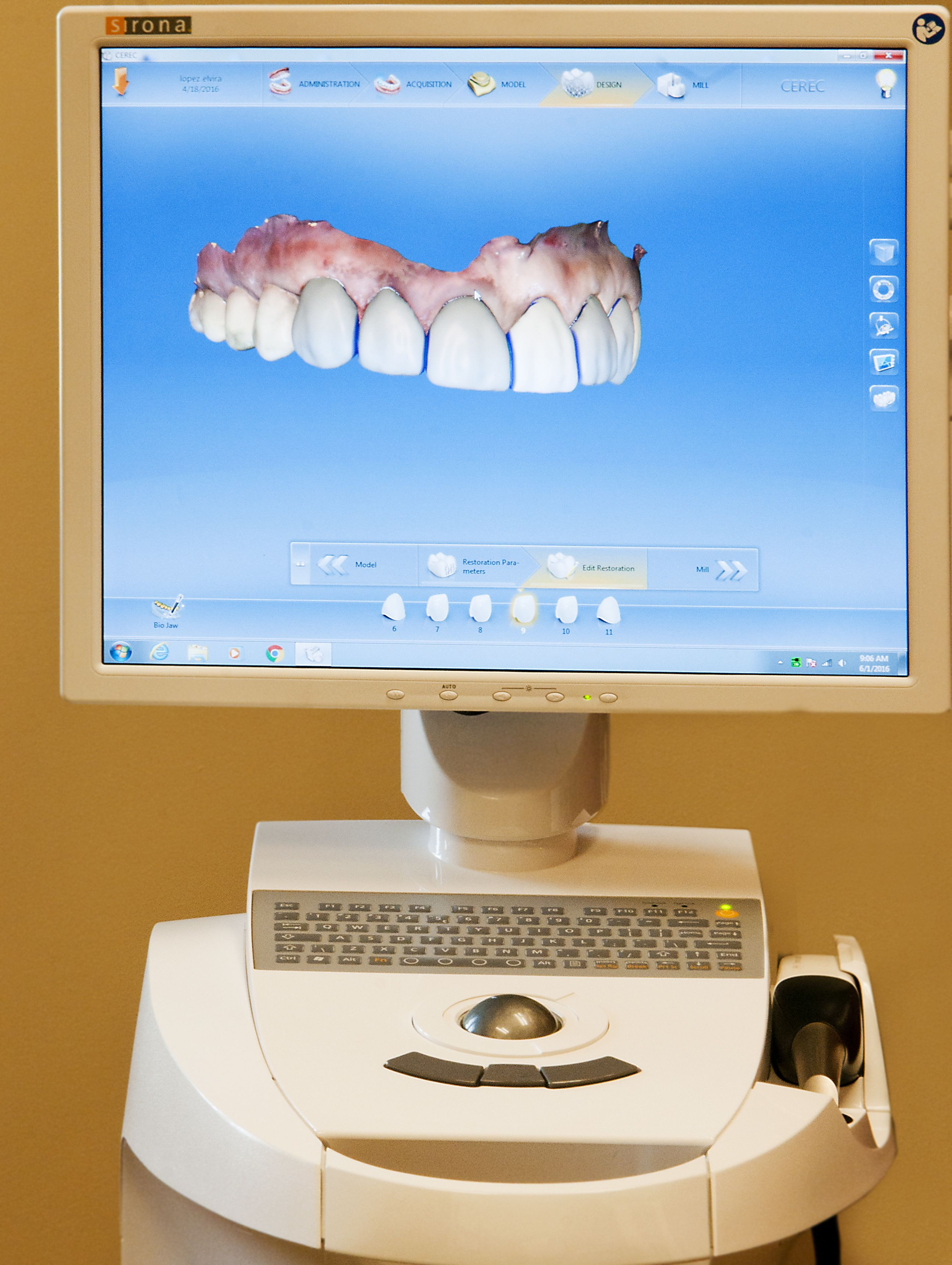 Same Day Dental Crowns Elkhart IN