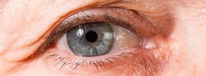 Closeup photo of an older person's eye