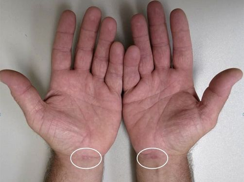 Wrists 2 and 4 weeks following endoscopic carpal tunnel surgery