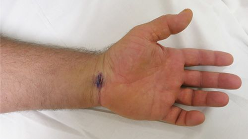 Wrist immediately following endoscopic carpal tunnel surgery