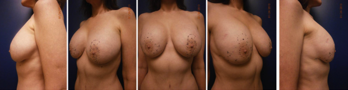 Series of before photos for a breast lift patient