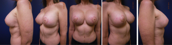 Series of after photos for a breast lift patient