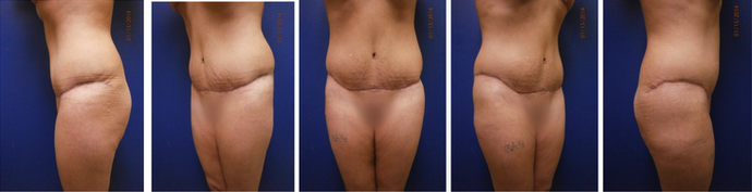 after tummy tuck