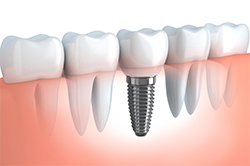 Illustration showing a dental implant in place