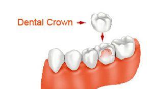 A dental crown illustration