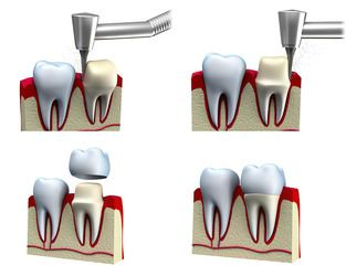 An illustration of the dental crown procedure