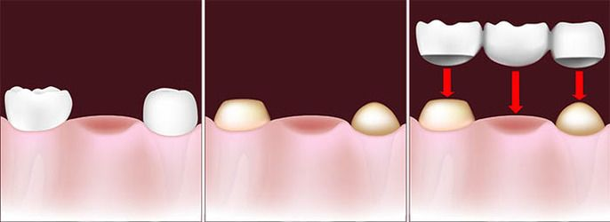 An illustration of a dental bridge being placed