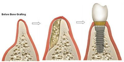 Illustration of bone development in a grafting procedure