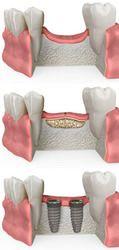 An illustration of ridge augmentation and bone development