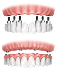 An illustrated representation of types of dental implant-supported dentures