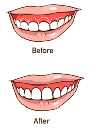 A before and after illustration of gum reshaping