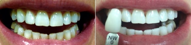 Image of whitened teeth before and after