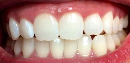 image of teeth whitening after