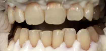 image of teeth whitening before
