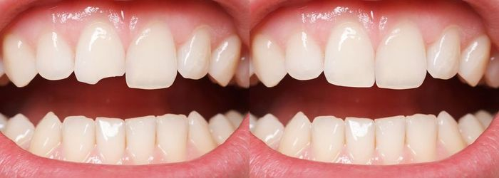 A patient's teeth, before and after dental bonding.