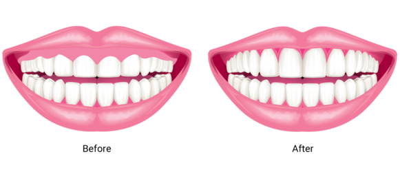 Before and after illustration of gum contouring.