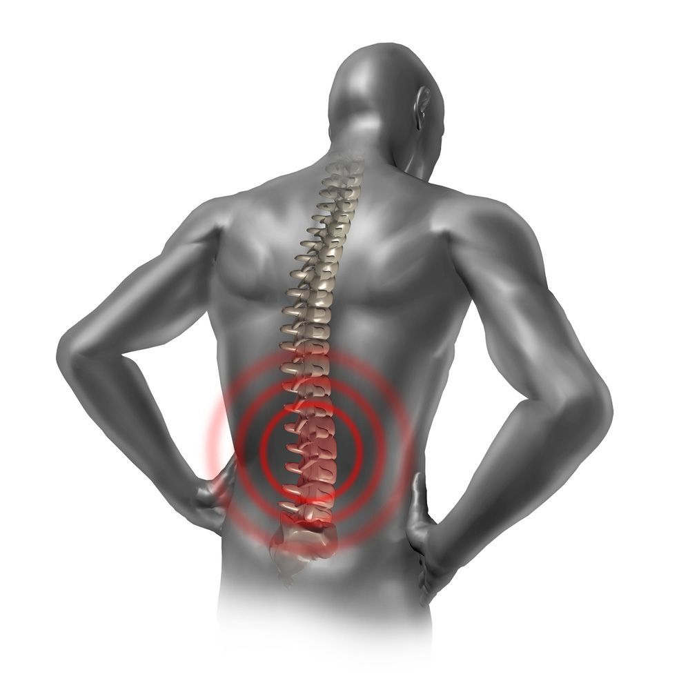 An illustrated example of a spinal cord injury
