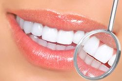 Close up of woman's very white teeth reflected in dental exam mirror