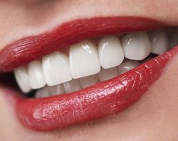 Close up of woman's white teeth and red lipstick