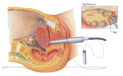 Illustration shows IVF procedure of Oocyte retrieval