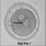 Illustration of embryo transfer as part of IVF procedure