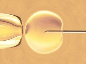 IVF Embryo Monitoring