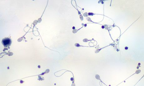 Close up view of sperm undergoing semen analysis