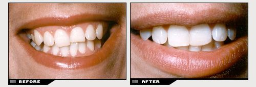 Dental bonding before and after