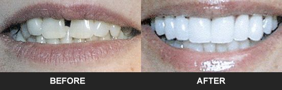 Before and after images of a porcelain veneers patient