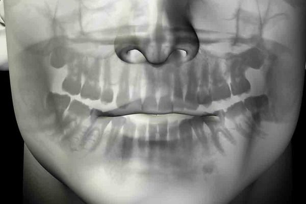 Transparent illustration showing a patient's face and teeth