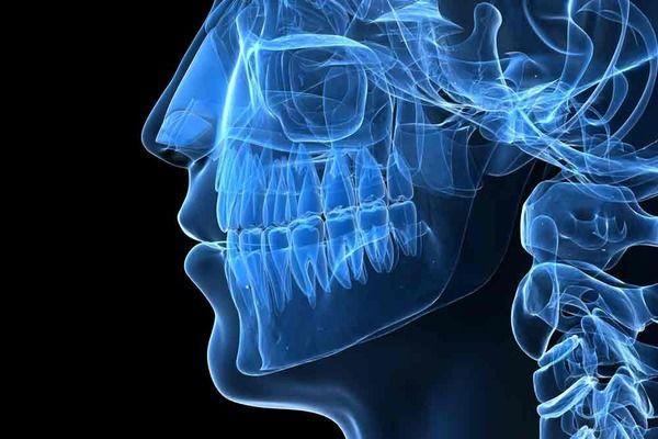 Digital illustration showing underlying oral structures