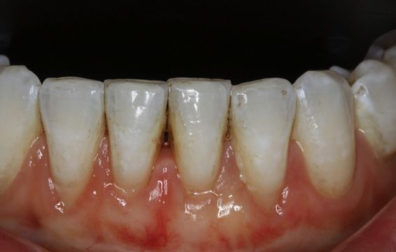 Close-up of a patient's gum line