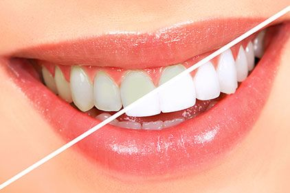 Female patient undergoing in-office teeth whitening