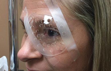 Image of woman with plastic eye shield