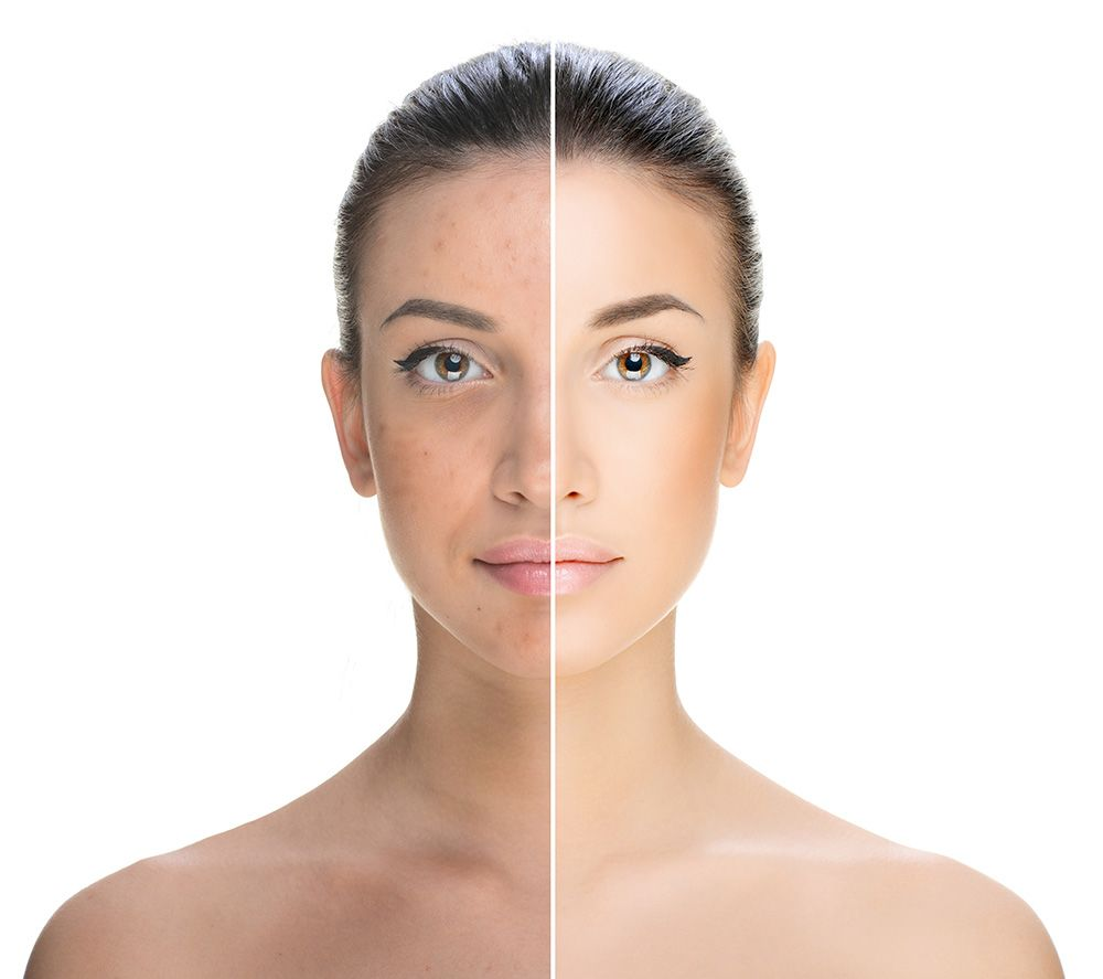 A before and after example of a laser skin treatment