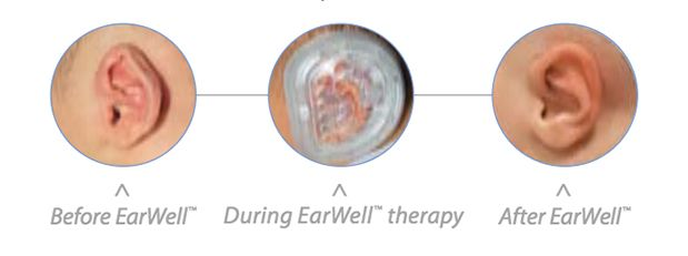 image of EarWell™ device