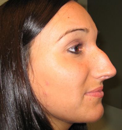 before rhinoplasty
