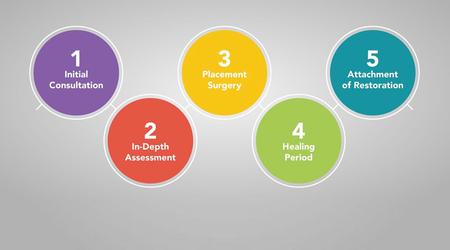 Graph of dental implant timeline