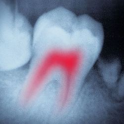 Black and white image of tooth with root canal highlighted in red