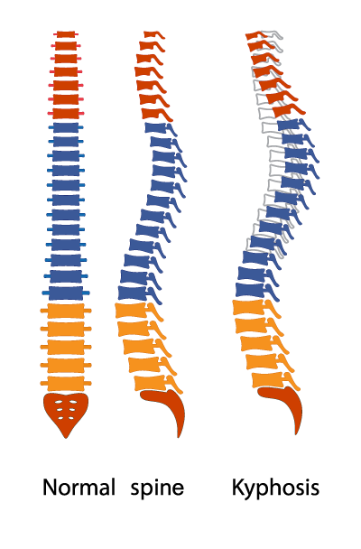 illustration of spines damaged by kyphosis