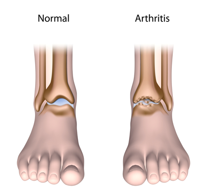 illustration of an ankle with arthritis