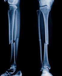 X-ray of broken leg bones