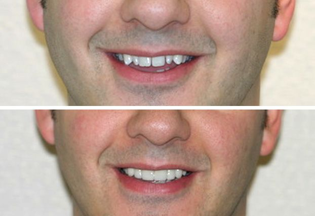 Before and after veneers pictures