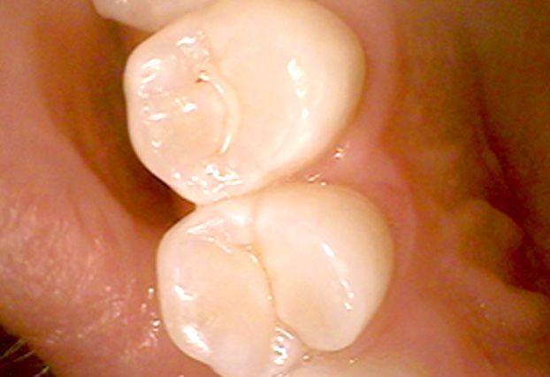 Close up of molars